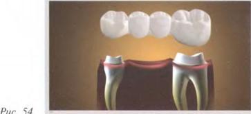 Болит передний зуб на котором пломба